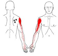 Front shoulder pain: pain around the biceps, the pain is deep inside ...